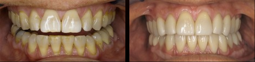 Full Mouth Reconstruction
